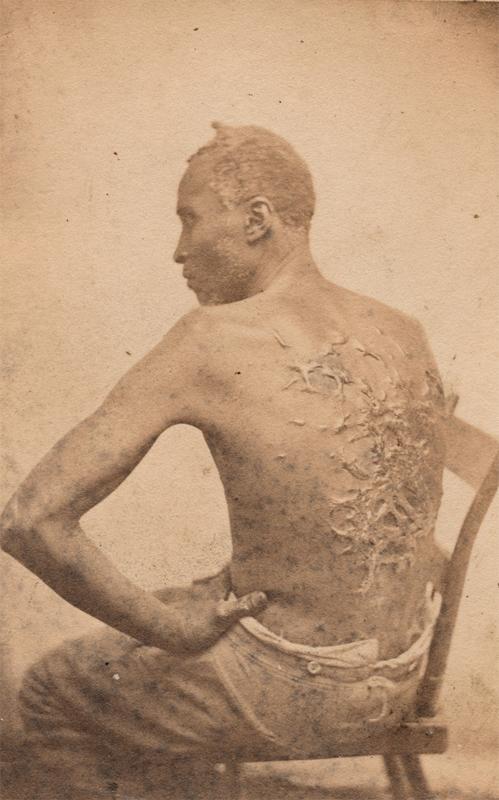 """""""Costas açoitadas"""", atribuída a McPherson & Oliver. Abril de 1863."""