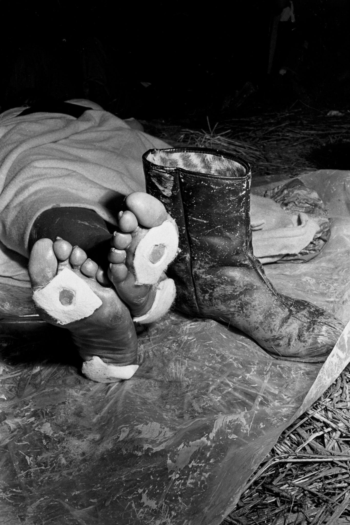 """Close-updos pés de um marchante exausto, com bolhas depois de caminhar 40 milhas.Fotos de James """"Spider"""" Martin, 1965"""